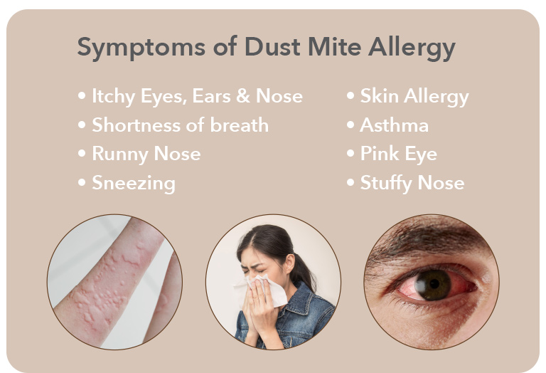 Dust Mite Allergy Symptoms - Coway Mattress Care Mobile Page